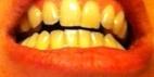 dents Apithérapie Miel Naturopathie Réflexologies Bien-être